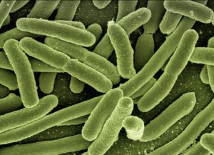 Toilettenbuerste Reinigung vorbeugend gegen Krankheiten